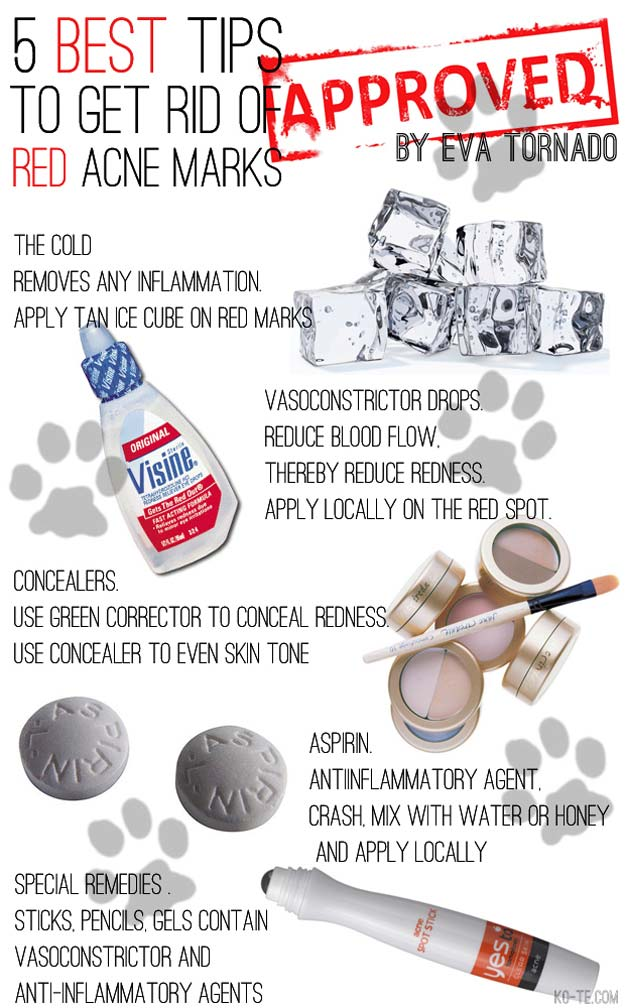 Best Beauty Hacks - Get Rid of Acne Marks - Easy Makeup Tutorials and Makeup Ideas for Teens, Beginners, Women, Teenagers - Cool Tips and Tricks for Mascara, Lipstick, Foundation, Hair, Blush, Eyeshadow, Eyebrows and Eyes - Step by Step Tutorials and How To http://diyprojectsforteens.com/best-beauty-hacks